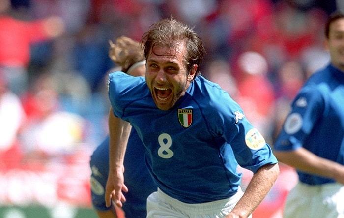 Antonio Conte Hair Loss Transplant