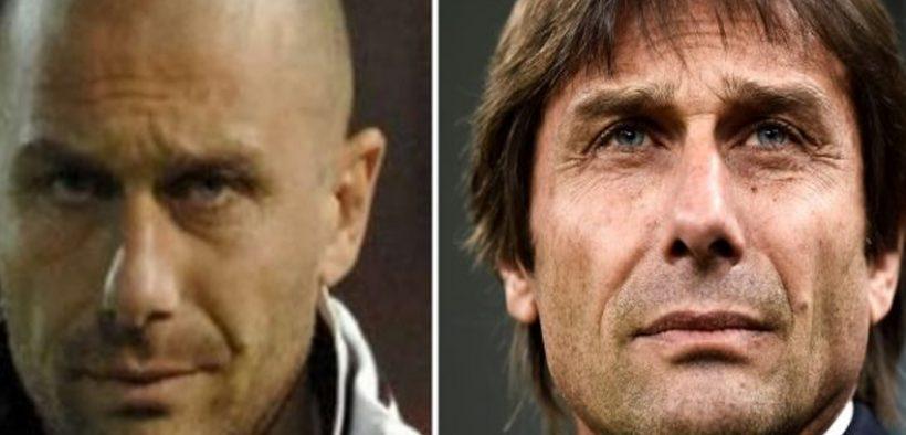Antonio Conte's hair transplant journey