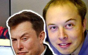 Elon Musk Hair Transplant